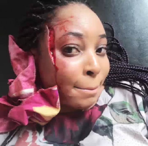 """Devil Almost Blinded My Eye But God Spared My Life"""" - Beautiful Lady(photos)"""